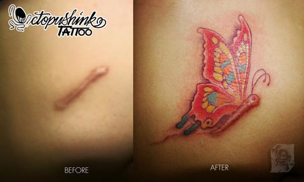 Tattoo Over Scars Pinoyexchange Com